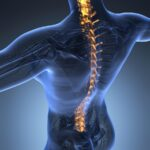 What Kind of Recovery Is Expected After a Spinal Cord Injury